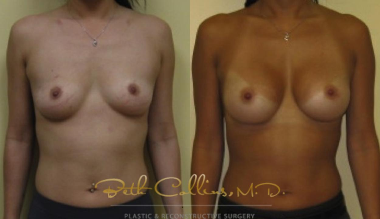 Breast Augmentation Case 26 Before & After View #1 | Guilford, CT | Beth Collins M.D.