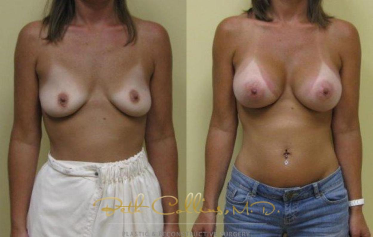 Breast Augmentation Case 32 Before & After View #1 | Guilford, CT | Beth Collins M.D.