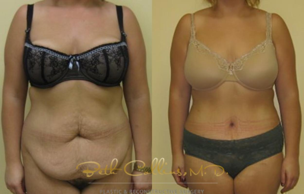 Tummy Tuck Case 4 Before & After View #1 | Guilford, CT | Beth Collins M.D.