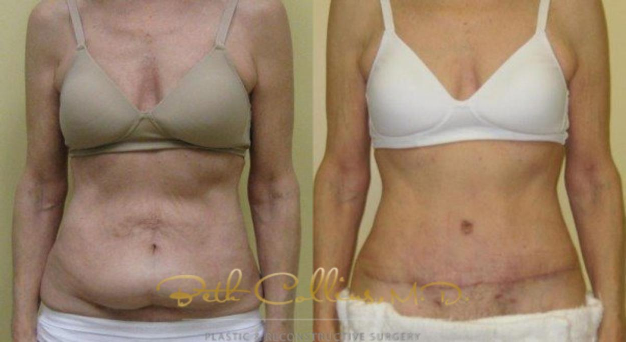 Tummy Tuck Case 6 Before & After View #1 | Guilford, CT | Beth Collins M.D.
